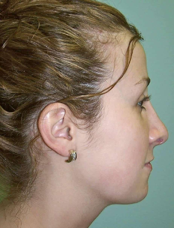 Rhinoplasty | Cosmetic Nose Surgery
