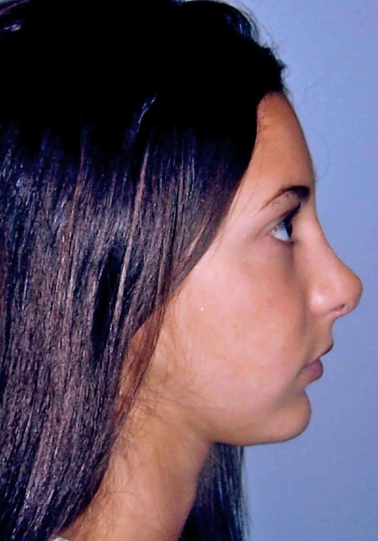 maxillofacial surgery | facial balance
