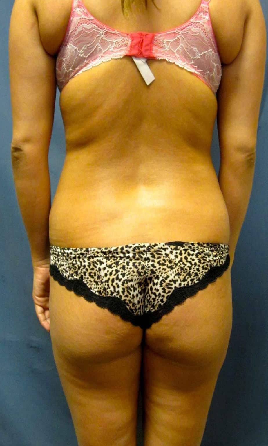 VASER LIPO| FAT TRANSFER | BRAZILIAN BUTT LIFT